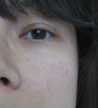 Before: Redness on the cheeks and visible pores (outdoor lighting) (© skinandcolors.com)